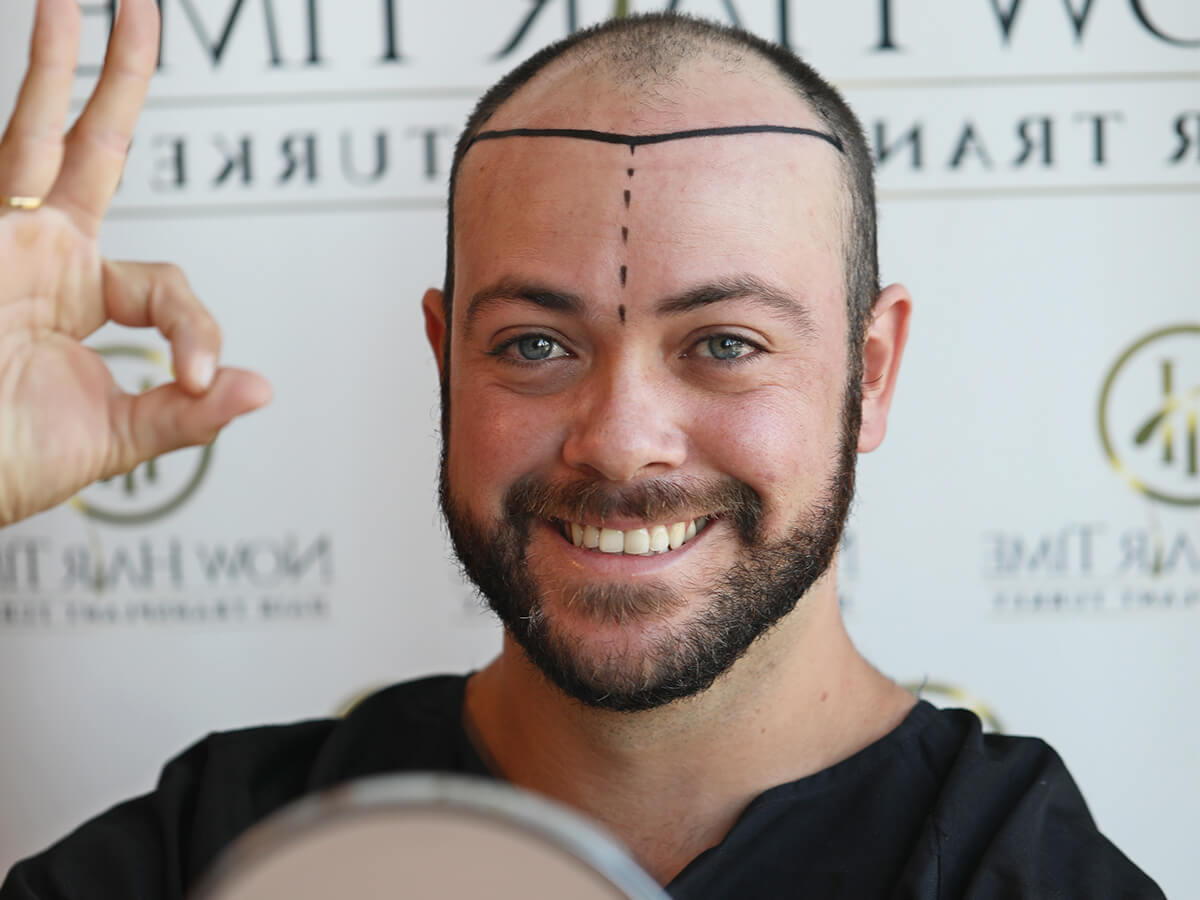 hairtransplant-1.jpg